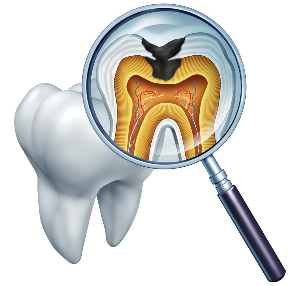 Terapia Cariilor Dentare