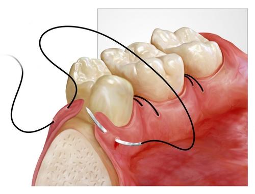 chirurgie dentala