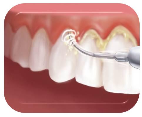 curatarea-dintilor